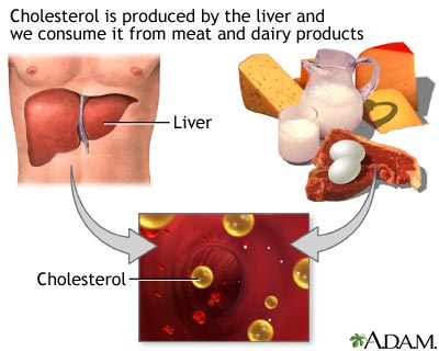 Cholesterol producers causing coronary artery disease